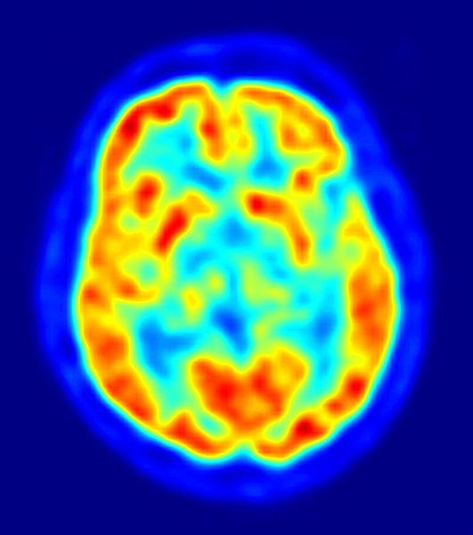 Adrafinil brain power