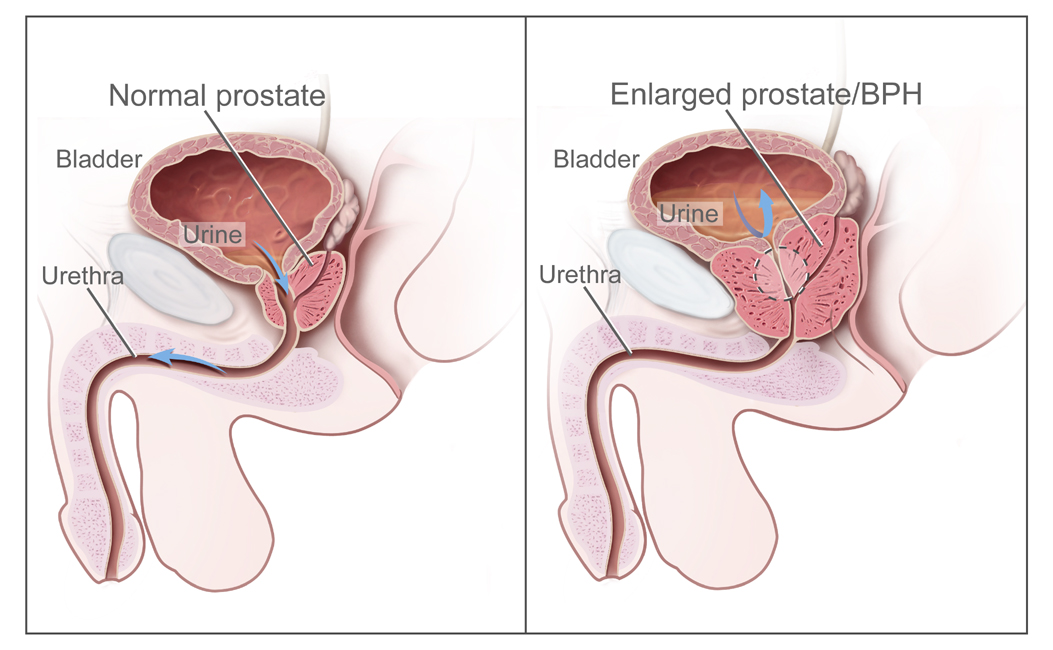 Normal prostate vs. enlarged prostate