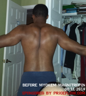 Before Magnitropin - Back