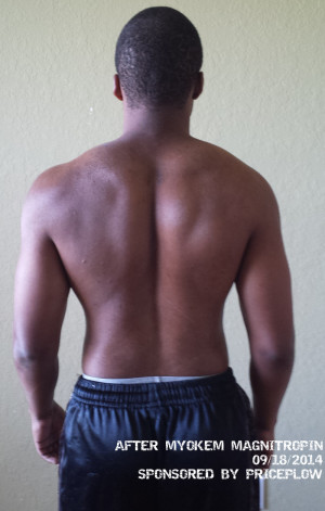 After Magnitropin (Back)