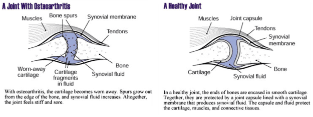 Healthy vs Arthritis Joint