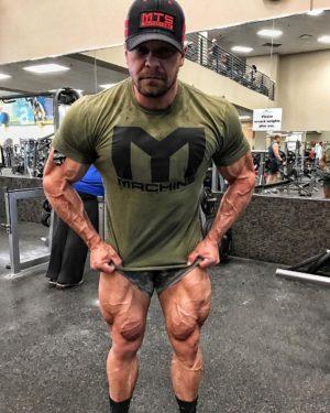 Marc Lobliner Legs