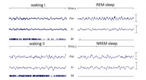 Mouse EEG