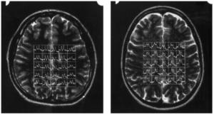 MSM Brain