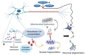 Neurodegeneration Causes